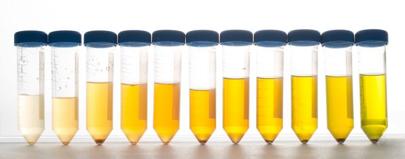 Supplements and Urine - Ask The Scientists