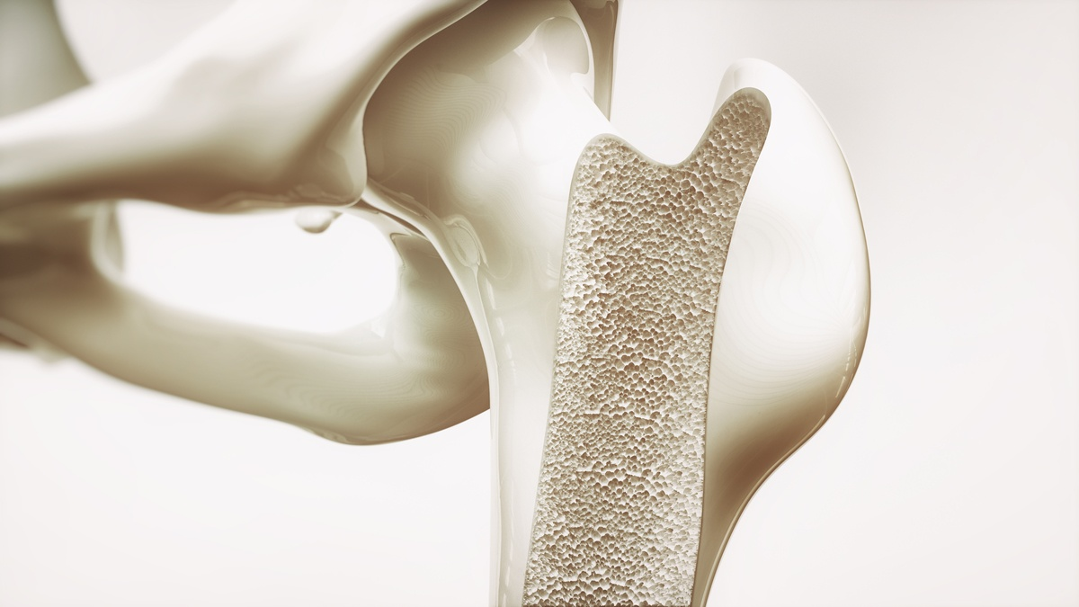 Magnesium And Bone Health Ask The Scientists