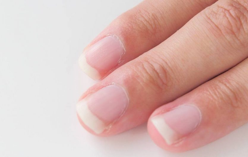 taking the mystery out of healthy fingernails ask the scientists